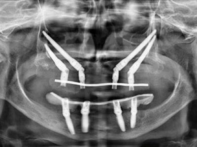 Grave atrofia del mascellare superiore - caso 1