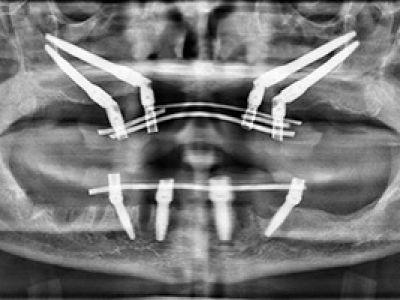 Grave atrofia del mascellare superiore - caso 2